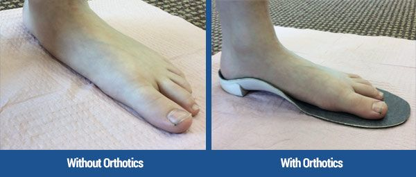 foot left, flat, with no support, then on right with an orthotic